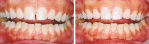 歯のすきま治療(小さい歯の場合)