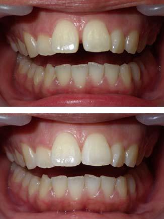 大きい前歯のすきまを樹脂製の材料で改善した写真です。