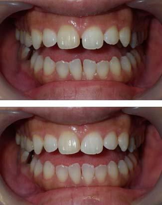 かんたんに治せる歯のすきまの写真です。