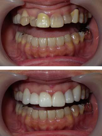 変色気味の歯をセラミッククラウンで改善した写真です。