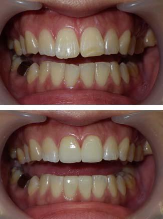 大きい歯をセラミッククラウンで小さくした写真です。