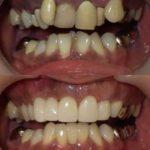 セラミッククラウンで歯を整列、歯ぐきもきれいに