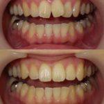 上前歯の部分的な矯正治療