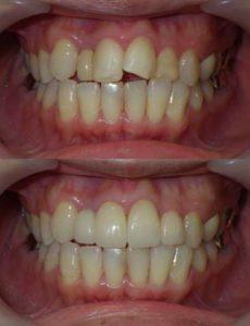 大きくねじれて重なりのある前歯の状態をセラミッククラウンを用いた審美歯科治療によって改善した治療写真です
