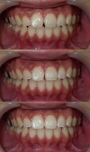 小さなわずかな歯のすきまを樹脂製材料で閉じた写真です。