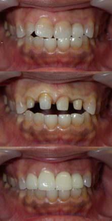 縞模様の変色歯をセラミッククラウンで改善した写真です。