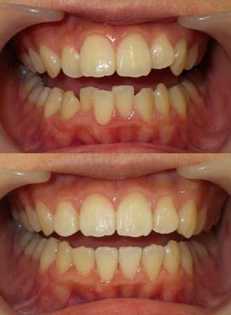 叢生を抜歯せずに治した治療写真です。