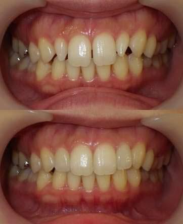 歯のすきま治療と細い歯を大きくする治療の写真です。