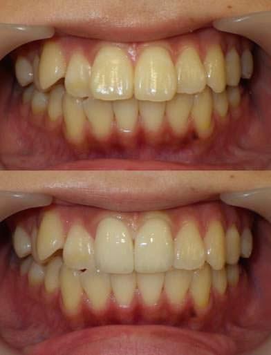 歯の大きさをセラミッククラウンで小さくした治療の写真です。