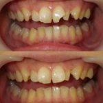 歯がかけてもつめもので回復できます