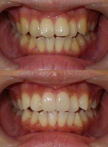 セラミッククラウンは最小本数で、あとはホワイトニングで歯を白く整えます