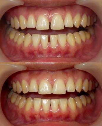 歯のすきまを閉じた治療の写真です。