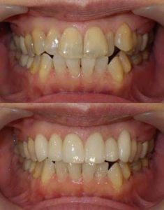 歯のねじれや重なりをセラミッククラウンで改善した写真です。