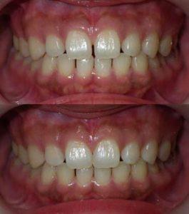 上前歯のわずかな歯のすきまを樹脂製の材料による審美歯科治療で改善した治療写真です