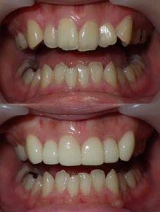 歯の変色と叢生をセラミッククラウンとホワイトニングで改善した治療写真です