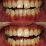 いろいろな歯のすきま治療
