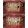 歯のねじれや重なりをセラミッククラウンで改善した写真です(アイキャッチ画像)。