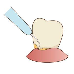 歯根表面を滑沢にするルートプレーニングという処置のイラストです。