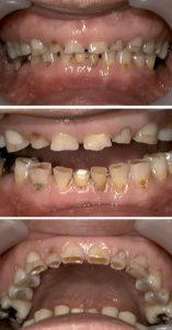 はぎしりで歯がけずれて歯が短くなった状態の写真です。