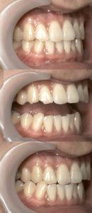 はぎしりで犬歯と手前の歯がけずれている状態の写真です。