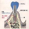 インプラントの構造を表したイラストです(アイキャッチ画像)。