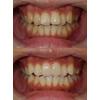 前歯2本はセラミッククラウン、ほかはホワイトニングで整えた治療の写真です(アイキャッチ画像)。