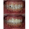縞模様の変色歯をセラミッククラウンで改善した写真です(アイキャッチ画像)。