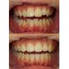 叢生を抜歯せずに治した治療写真です(アイキャッチ画像)。