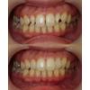 歯のすきま治療と細い歯を大きくする治療の写真です(アイキャッチ画像)。