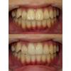 歯の大きさをセラミッククラウンで小さくした治療の写真です(アイキャッチ画像)。