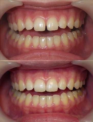 きれいな歯並びの方のすきまを閉じた写真です。