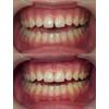 きれいな歯並びの方のすきまを閉じた写真です(アイキャッチ画像)。