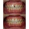 歯並びのきれいな方の歯のすきまを閉じた写真です(アイキャッチ画像)。