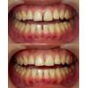 歯のすきまを閉じた治療の写真です(アイキャッチ画像)。