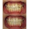 歯の角度、色、重なりを改善した写真です(アイキャッチ画像)。